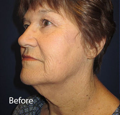 Before neck lift by Dr. Mitchell Blum, facial plastic surgeon, San Francisco, Tracy, California