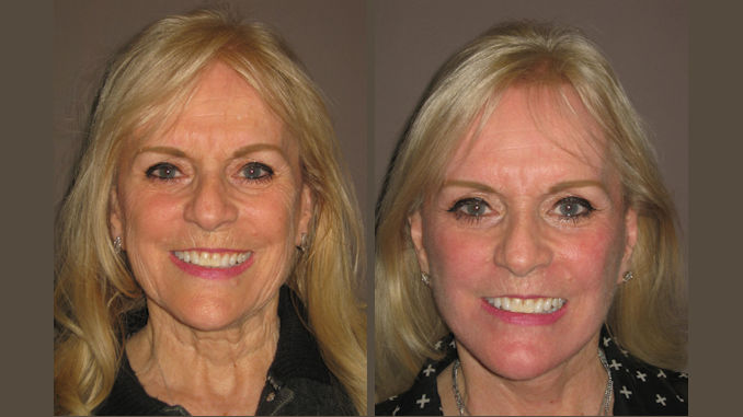 Before & After facelift and fractional laser resurfacing by Dr. Brian Machida, facial plastic surgeon, Inland Empire, California