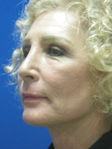 After laser-assisted facelift+neck lift, full face laser resurfacing by Dr. Ritu Malhotra Cleveland, Ohio