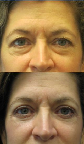 Before & After upper and lower blepharoplasty eyelid surgery by Dr. Ritu Malhotra, facial plastic surgeon, Cleveland, OH