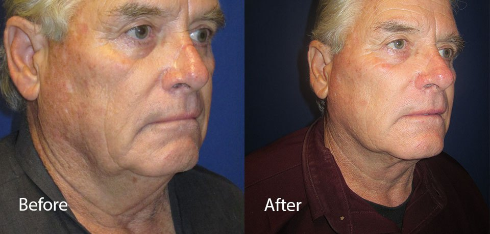 Facelift by Dr. Mitchell Blum, facial plastic surgeon, Tracy, East Bay Area