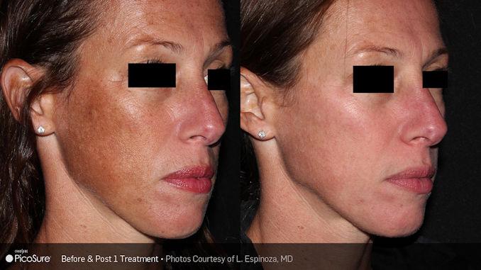 PIcosure-skin dPicoSure complexion improvement from sun spots offered by Dr. Brian Machida, facial plastic surgeon, Inland Empire, California