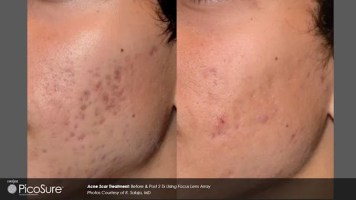 PicoSure acne scar improvement available from Dr. Brian Machida, facial plastic surgeon, Ontario, Inland Empire, California