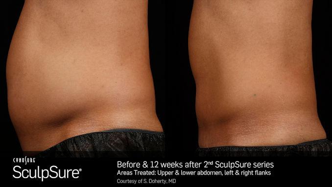 SculpSureBA_SidebySide_Male offered by Dr. Brian Machida, facial plastic surgeon, Inland Empire, CA