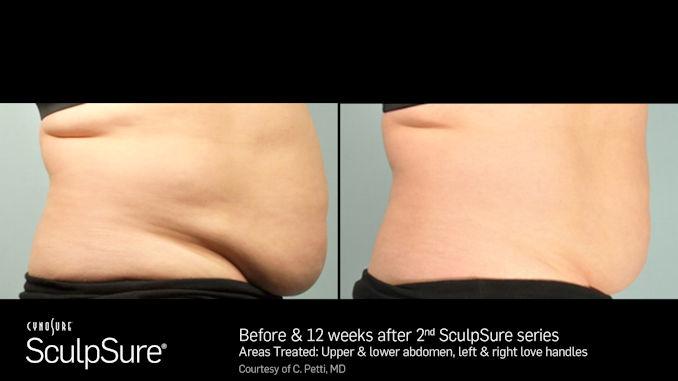 SculpSureBA__Female with abdominal fat offered by Dr. Brian Machida, facial plastic surgeon, Inland Empire, California