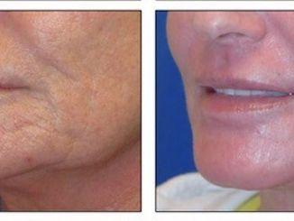 Renuvion, J-Plasma, skin resurfacing, wrinkles, lip lines, acne scars