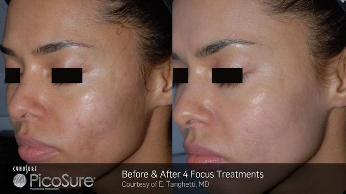 Latina complexion, hyperpigmentation, acne scar removal, Olive complexion, Mediterranean complexion PicoSure, Dr. Brian Machida, facial plastic surgeon, Inland Empire, CA