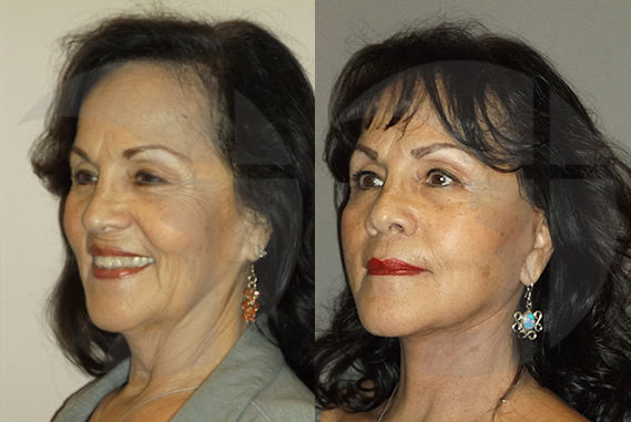 facelift, neck lift by Dr. Brian Machida, facial plastic surgeon, Inland Empire, Ontario, California