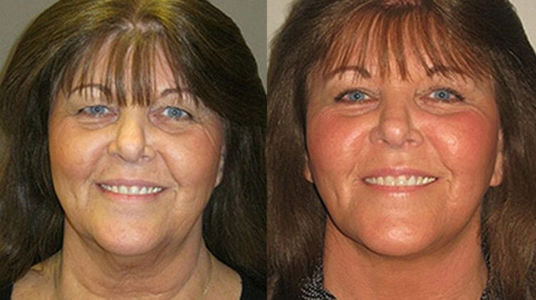 C-Theresa Before & After facelift, necklift by Dr.-Machida, facial plastic surgeon, Inland Empire,California