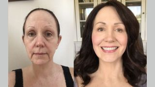 J-plasma, facelift, Arian Mowlavi MD, Laguna Beach CA, Dr. Brian Machida, Ontario, Inland Empire, CA, Los Angeles, California