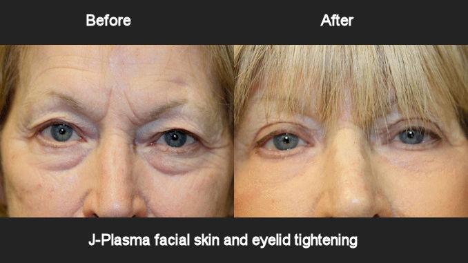 J-Plasma skin and eyelid tightening offered by Dr. Brian Machida, facial plastic surgeon, Inland Empire, Los Angeles,CA, Dr. Arnold Almonte, plastic surgeon, Sacramento, California