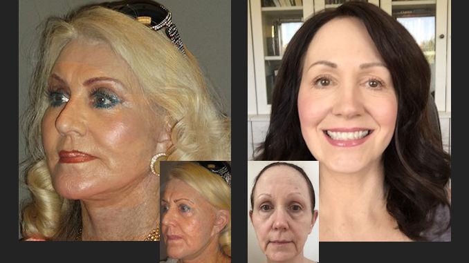 Facial plastic surgeons in vancouver washington-5318