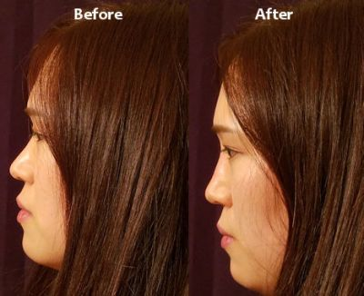 liquid rhinoplasty, liquid nose job by Dr. Mitchell Blum, facial plastic surgeon, San Francisco Bay Area, California, CA Before and After photo