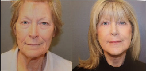 J-Plasma, J-Platzy,minimally invasive, face lift, offered by Dr. Ritu Malhotra, facial plastic surgeon, Cleveland, OH