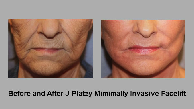 Before and After J-Plasma, J-Platzy minimally invasive face lift FF