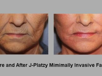 J-Platzy, J-Plasma Renuvion, minimally invasive facelift offered by Dr. Ritu Malhotra, facial plastic surgeon, Cleveland, OH