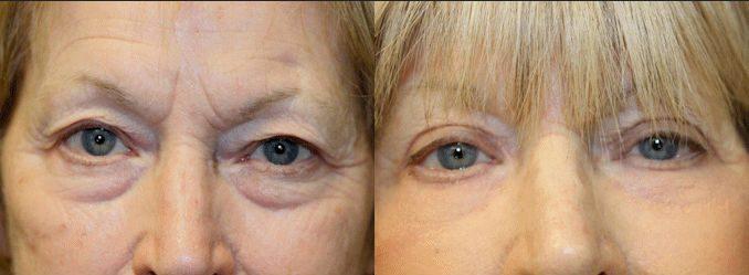 bags under eyes, blepharoplasty, J-Plasma, Renuvion, noninvasive blepharoplasty
