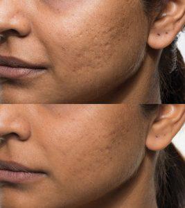 Bellafill, acne scars, acne scar treatment, darker skin, dark skin,Dr. Brian Machida, facial plastic surgeon, Inland Empire, CA