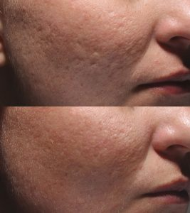 Bellafill for acne scars, acne scarring in Inland Empire Dr. Brian Machida, facial plastic surgeon