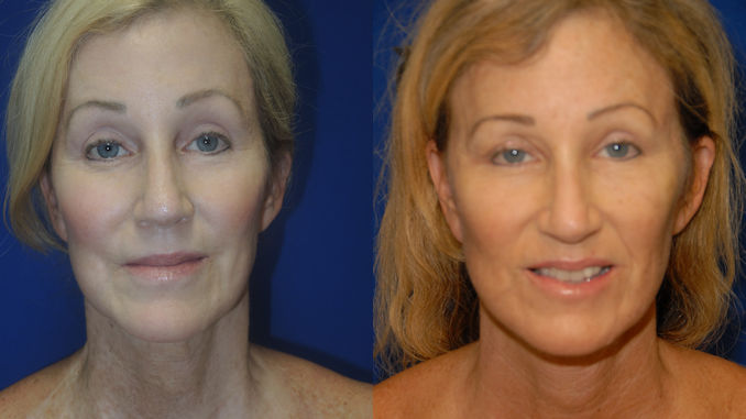 Female 56 Before & After Renuvion J-Plasma by Dr. William Seare