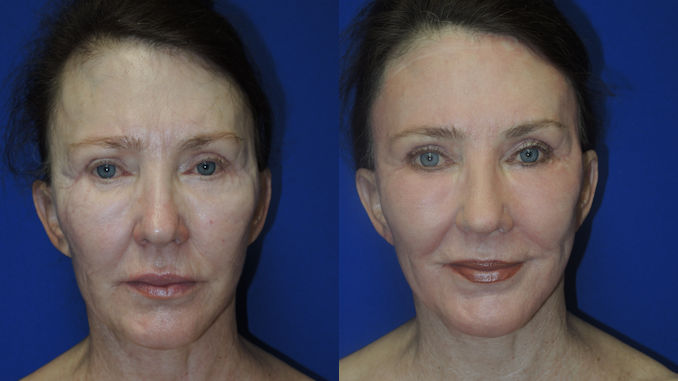 Female,69 Renuvion J-Plasma Before and After photo
