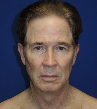 Male, 71 Before Renuvion J-Plasma Dr. William Seare