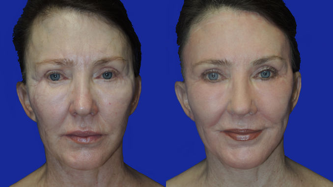 Renuvion J-Plasma San Diego, Carlsbad, CA by Dr. William Seare, plastic surgeon, Before and After photo, woman 69
