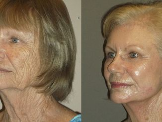 Renuvion J-Plasma line wrinkles Inland Empire by Dr. Brian Machida, facial plastic surgeon, Ontario CA