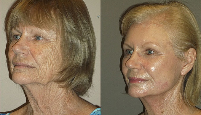 Renuvion J-Plasma wrinkles Inland Empire by Dr. Brian Machida, facial plastic surgeon, Ontario CA
