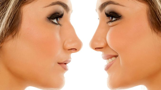 rhinoplasty Inland Empire, Rhinoplasty Before and After, non surgical nose job Inland Empire