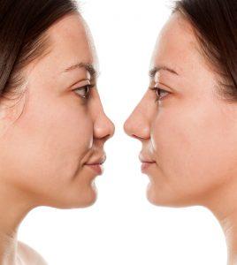 Non surgical nose job, Inland Empire, liquid rhinoplasty, Dr. Brian Machida, facial plastic surgeon