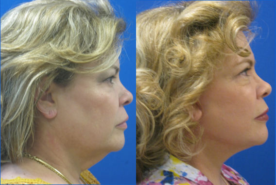double chin Cleveland, facelift Cleveland, face lift Cleveland, neck lift Cleveland, blepharoplasty Cleveland, Dr. Ritu Malhotra, Enhanced Image Center