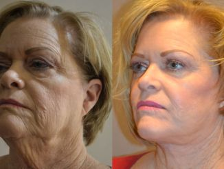 plastic surgery, Inland Empire, facelift Inland Empire, laser Inland Empire, Dr. Brian Machia