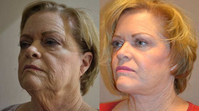 facelift Inland Empire, plastic surgery, Inland Empire, facelift cost Inland Empire, laser Inland Empire, Dr. Brian Machia