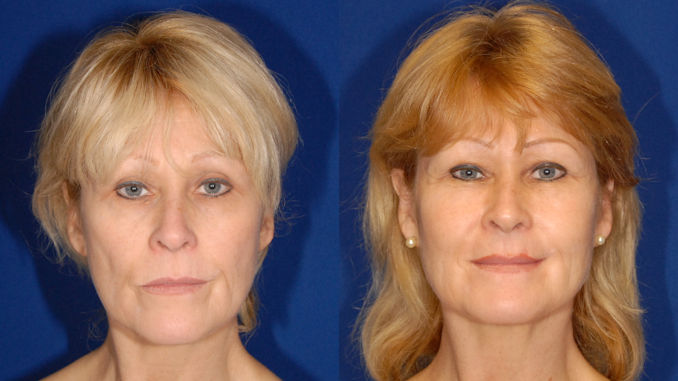 Liposuction, Fat Transfer, HBOT Before & After by Dr. William Seare
