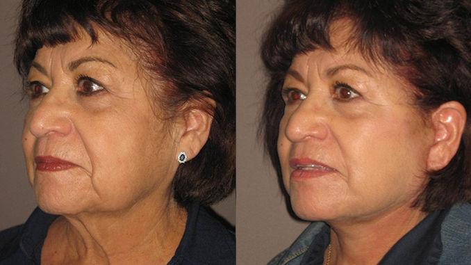 neck lift Inland Empire, necklift Inland Empire, Dr. Brian Machida, STC Plastic Surgery