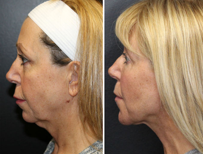 neck lift, Renuvion, non surgical neck lift, Inland Empire, Washington DC, Dr. Paul Ruff