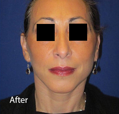 After-facelift-woman2-by-Dr.-Mitchell-Blum-facial-plastic-surgeon-San-Francisco-California-
