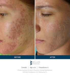 microneedling Inland Empire, Skinpen, acne, scars