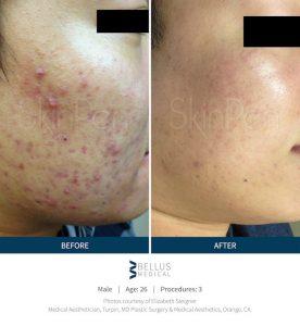 acne, microneedling, Inland Empire, Skinpen