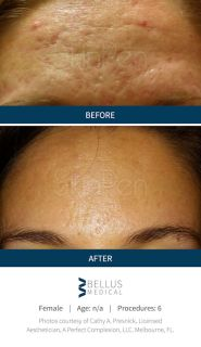 microneedling Inland Empire, acne scar Inland Empire, acne scars, skin rejuvenation, acne, Skinpen