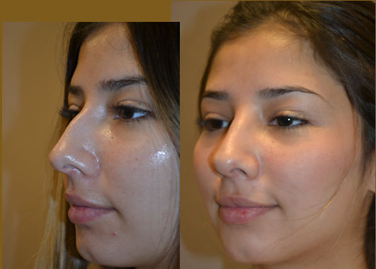 Nose Job Inland Empire, Rhinoplasty Inland Empire, Dr. Brian Machida, Before and After