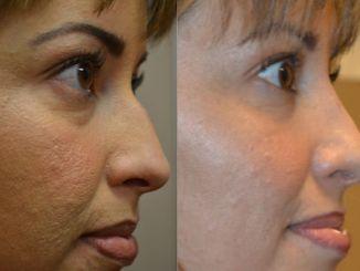 rhinoplasty Inland Empire, nose job Inland Empire, Dr Brian Machida