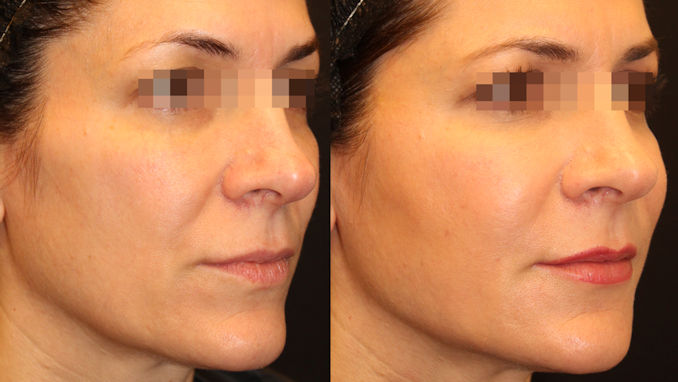 nasolabial folds Inland Empire, BeautiFill, Dr. Brian Machida, Dr. Jeffrey Hsu