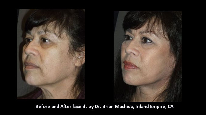facelift Inland Empire, face lift Inland Empire, Dr. Brian Machida, Before and After