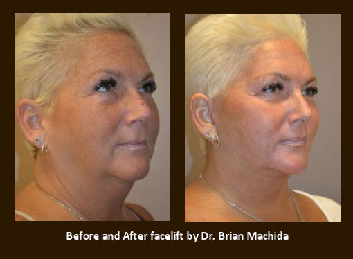 facelift Inland Empire, face lift Inland Empire, Dr. Brian Machida, neck fat, Before and After
