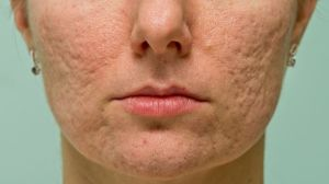 acne scars, acne scar treatment, Inland Empire