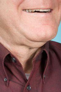 neck fat, double chin, man, male