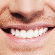 testimoni pengguna denta seal