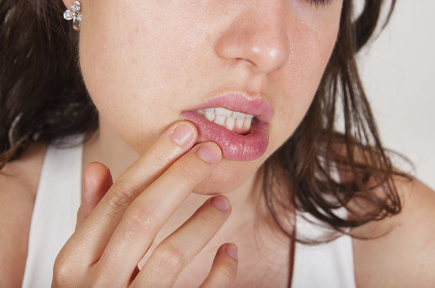 Más de la mitad de las personas en el mundo infectadas con herpes: OMS